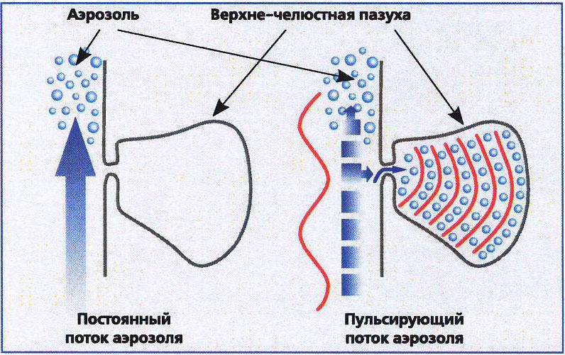 Лечение синусита и риносинусита у детей