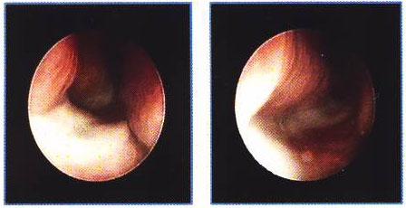 Лечение гайморита и ринита