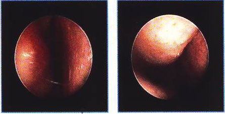 Лечение гайморита ринита синусита у детей